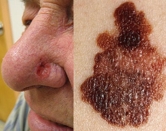Skin Cancers Children Adult Skin